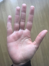 eczema-main-happy-curly-blog-avril-18-1