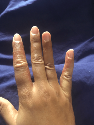 Main en crise avec eczema