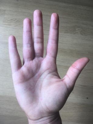 Main avec eczema